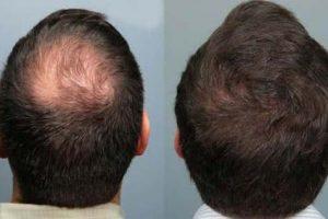 tratamento-alopecia-androgenetica-calvicie